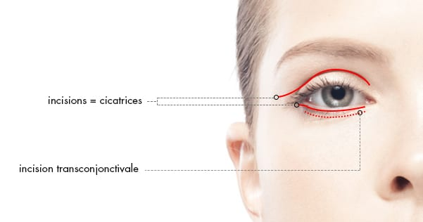 AESTHETIC EYELID SURGERY OR BLEPHAROPLASTY Docteur Diacakis