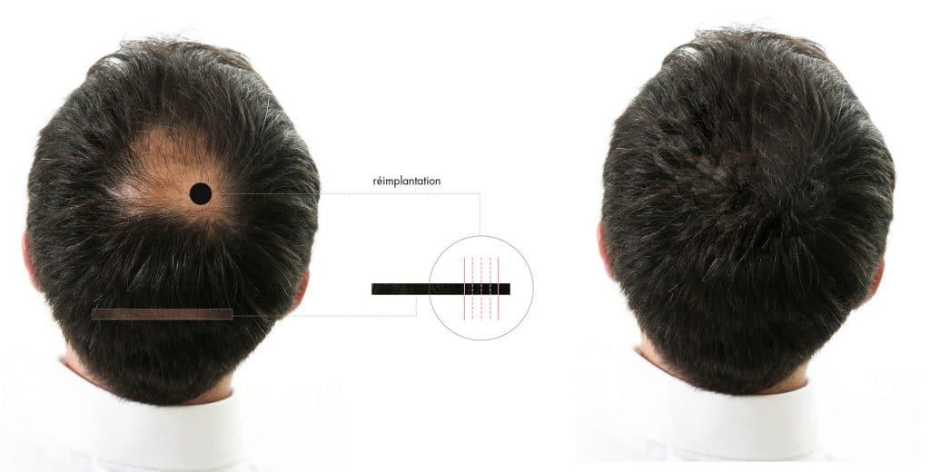 Docteur Diacakis - Greffe de cheveux