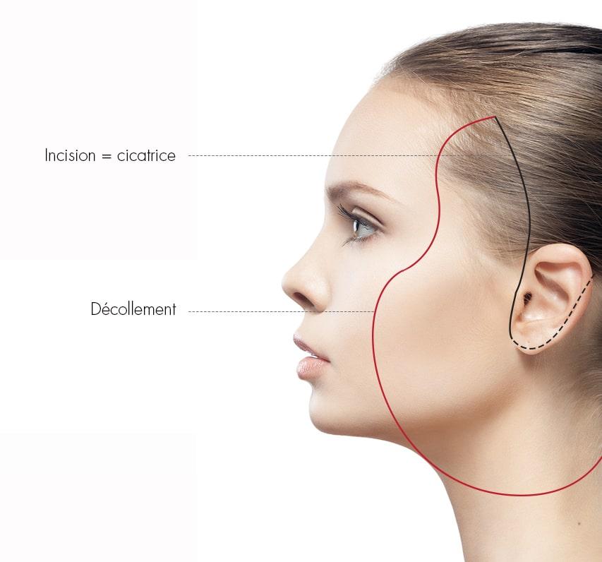 Schéma du lifting du visage