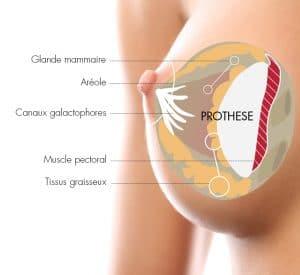Augmentation mammaire par le Docteur Diacakis