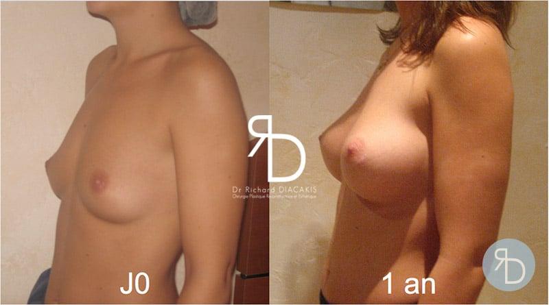 Résultats de l'augmentation mammaire du Docteur Diacakis sur une patiente