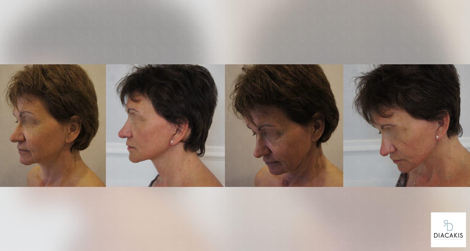 lifting-visage-chirurgie-esthetique-paris-docteur-diacakis-3