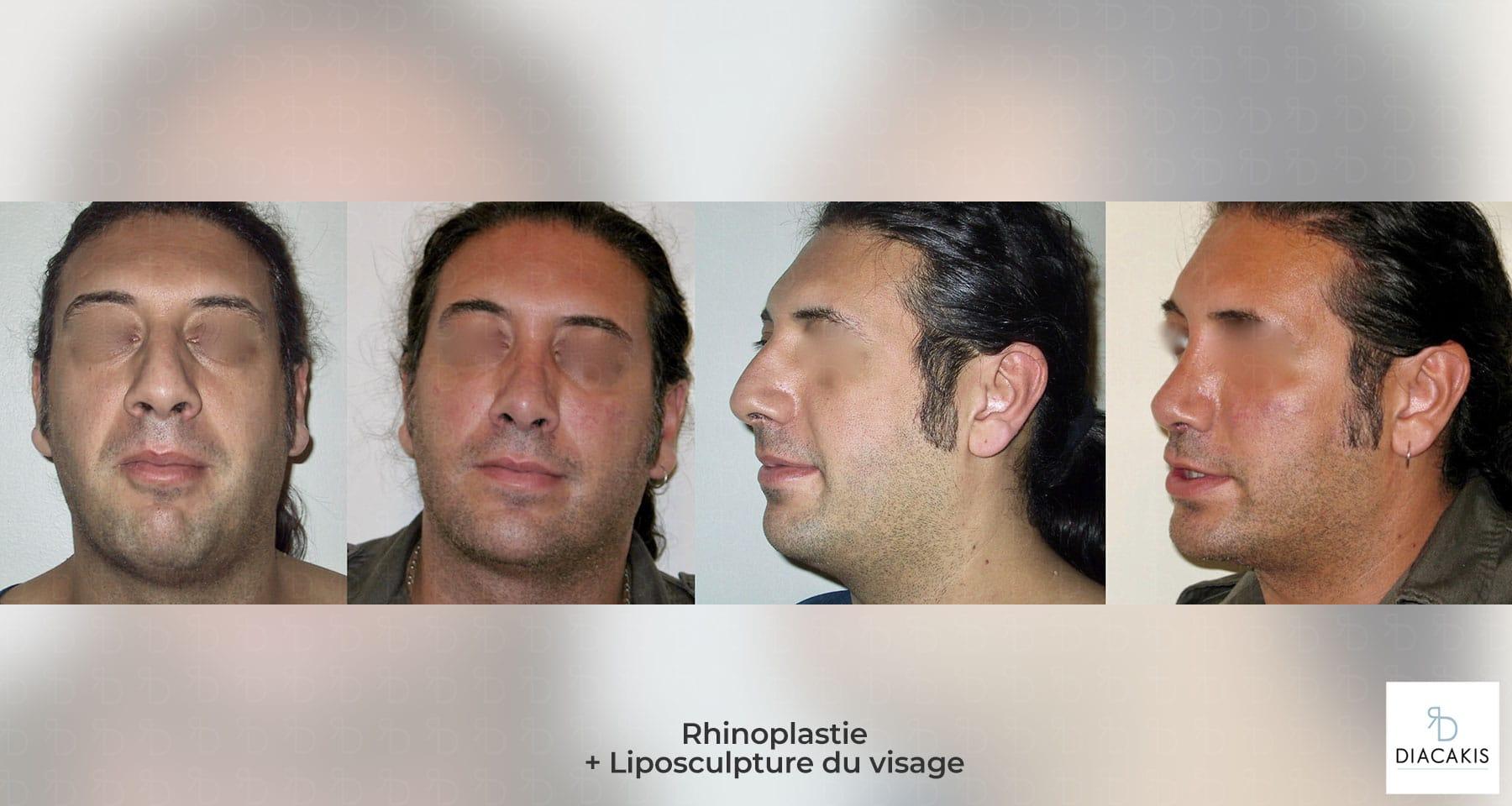 rhinoplastie-ablation-atelle-7-joursparis-chirurgie-esthetique-nez-paris-docteur-diacakis