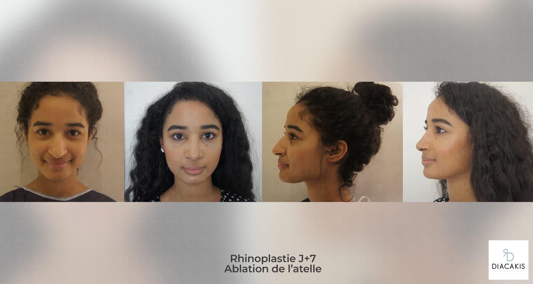 rhinoplastie-ablation-atelle-7-joursparis-chirurgie-esthetique-nez-paris-docteur-diacakis-5