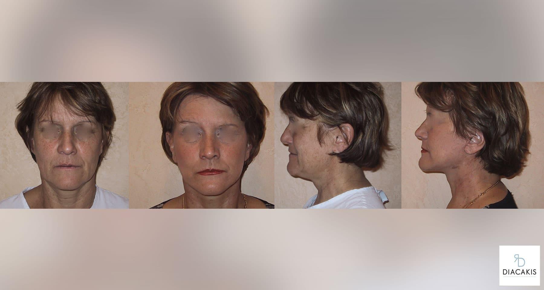 lifting-visage-et-cou-paris-chirurgie-esthetique-docteur-diacakis-2