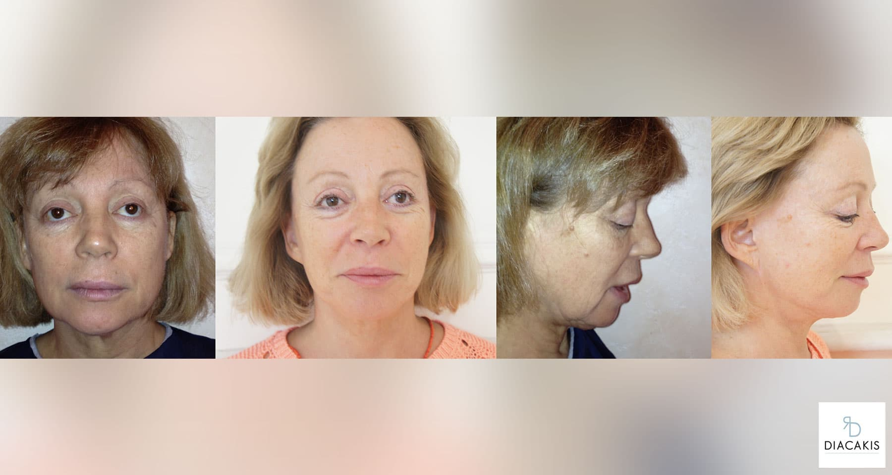 lifting-visage-et-cou-paris-chirurgie-esthetique-docteur-diacakis-3