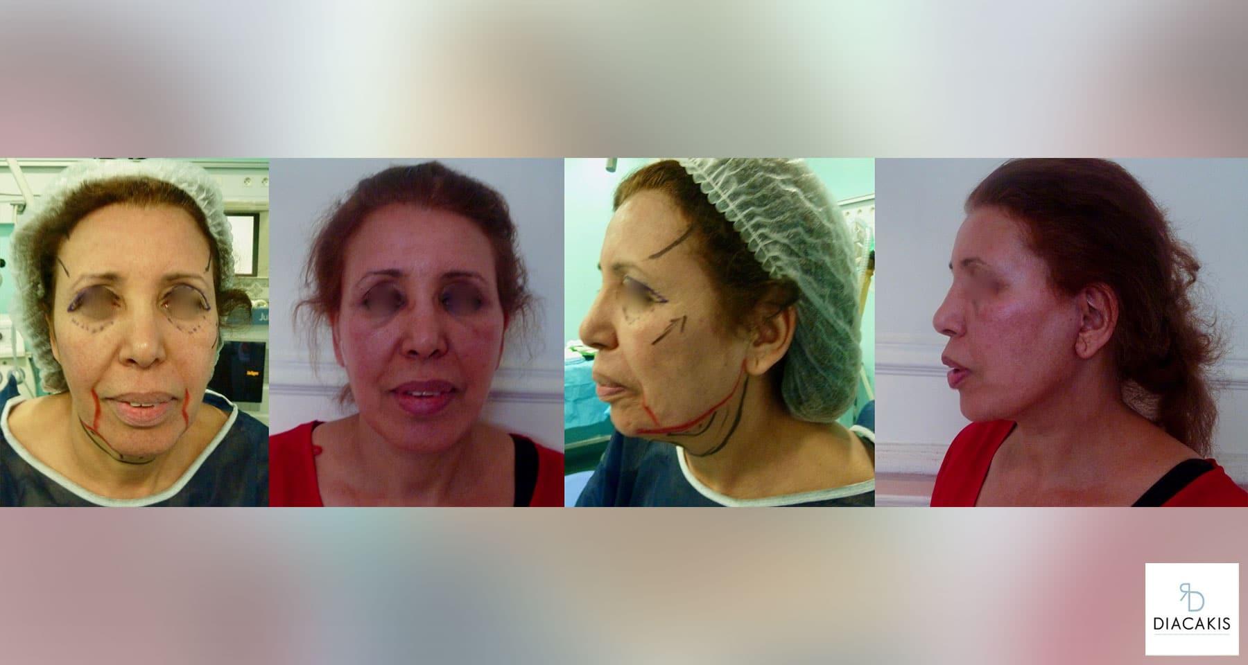 lifting-visage-et-cou-paris-chirurgie-esthetique-docteur-diacakis