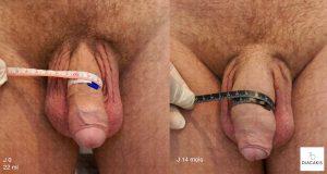 Résultats suite à une augmentation du volume du pénis