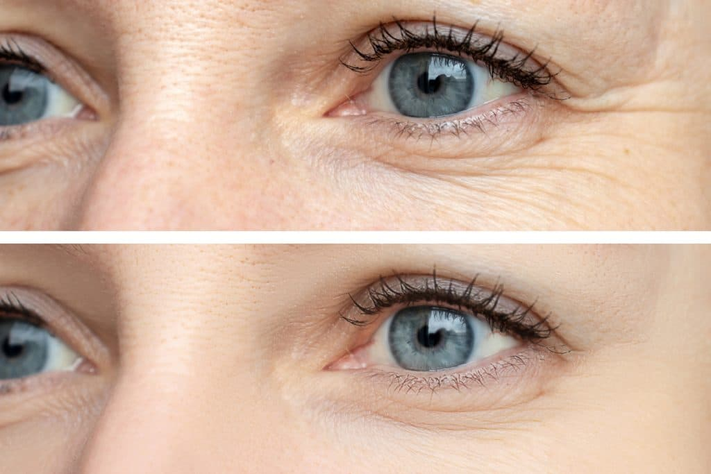 visage de femme après une injection d'acide hyaluronique