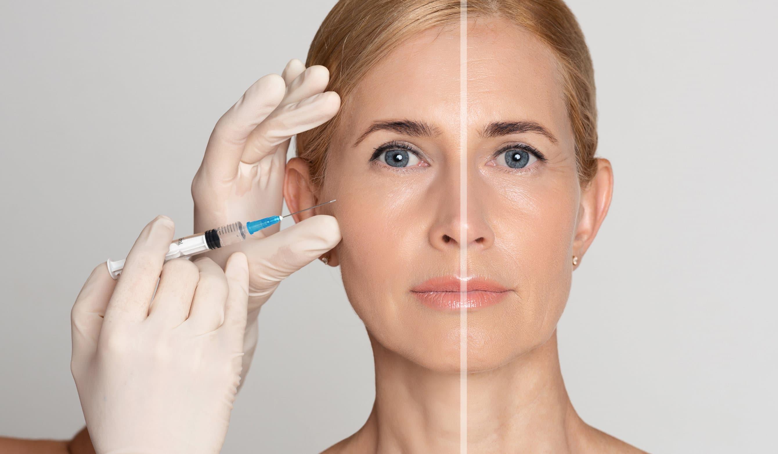 femme ades rides qui a subit des injections d'acide hyaluraunique pour rajeunir son visage