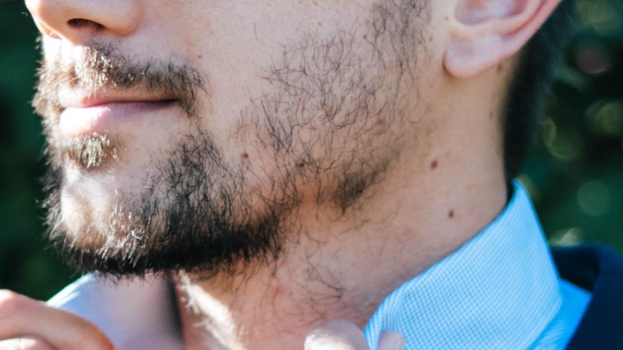 visage d'un homme qui s'apprête à réaliser une greffe de barbe