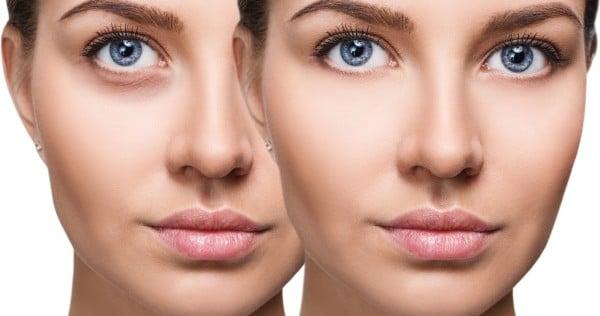 visage d'une femme avant et après un tratement pour corriger les cernes