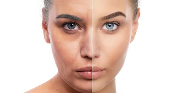 visage d'une femme avant et après avoir corriger les cernes