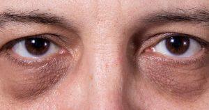 homme avec des cernes foncées sous les yeux